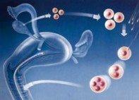 Fertilização In Vitro – FIV