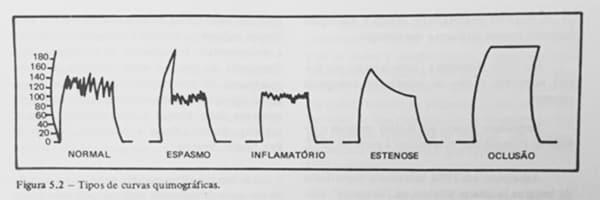 Kimoinsuflação - Insuflação Tubárica